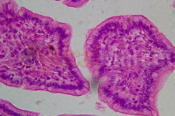Хроническое воспаление толстой кишки под микроскопом